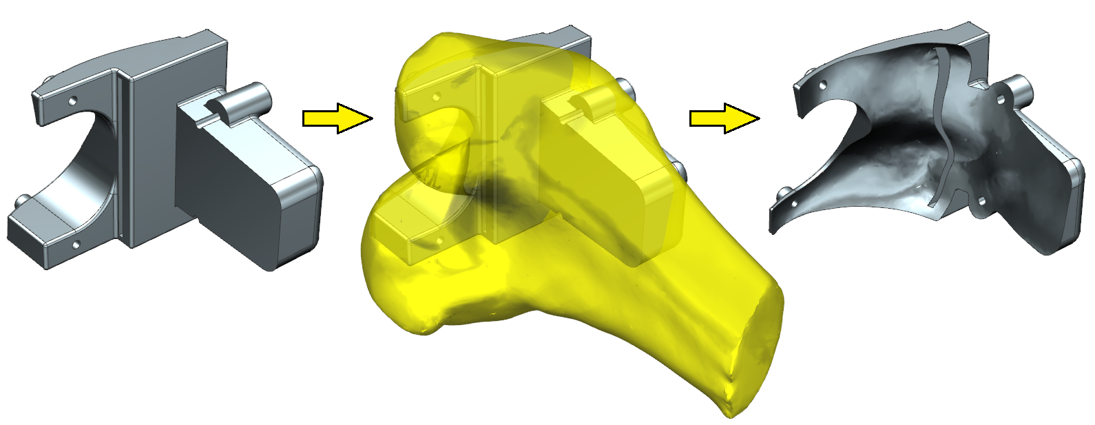 Rys. 2. Wykorzystanie zeskanowanej geometrii kości wprocesie modelowania wstawki