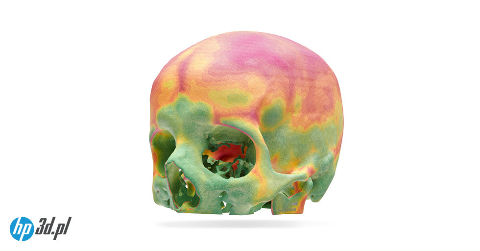 Przykład przedoperacyjnego wydruku czaszki pacjenta – technologia HP Multi Jet Fusion