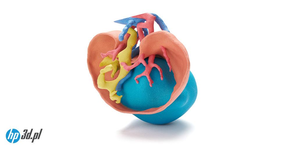 Model serca zwrodzona wadą